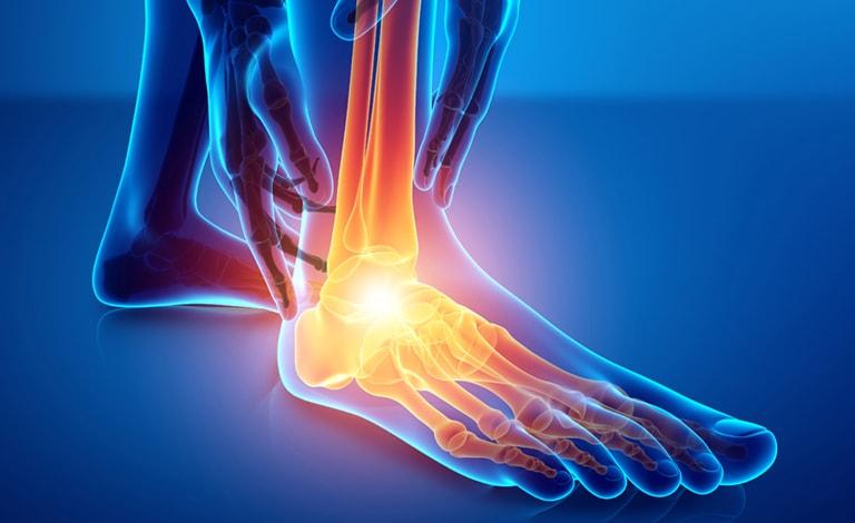 cos è l artrite psoriasica